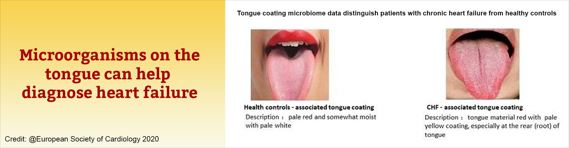 Tongue Microbes Window to Heart Health