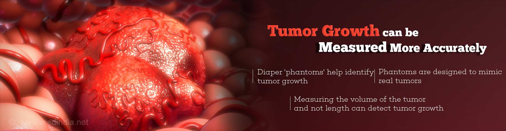 New Approach Can Measure Tumor Growth More Accurately
