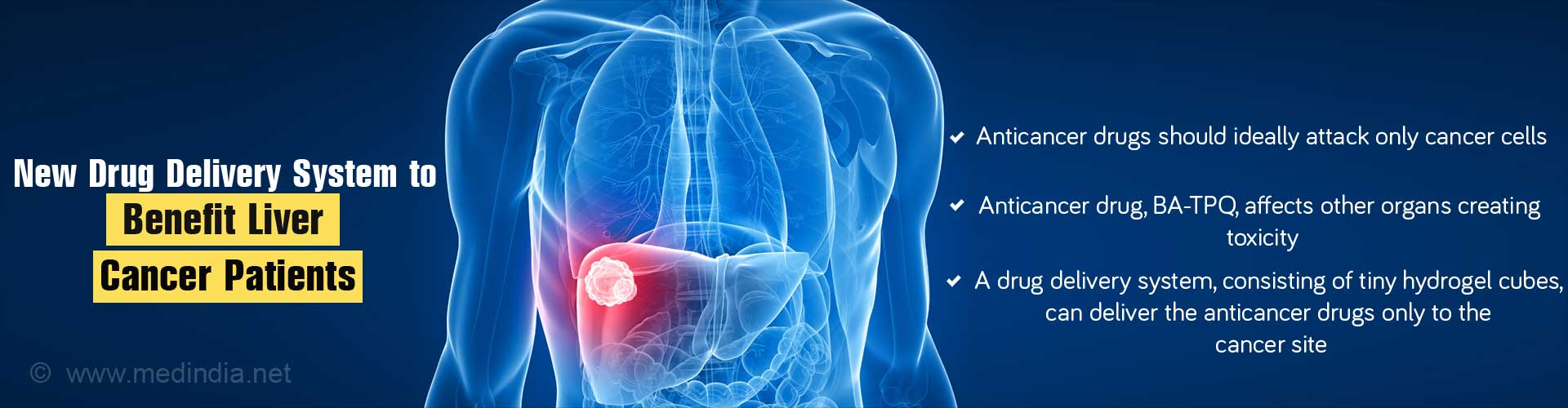 Fresh Lease of Life for Liver Cancer Patients With New Drug Delivery System