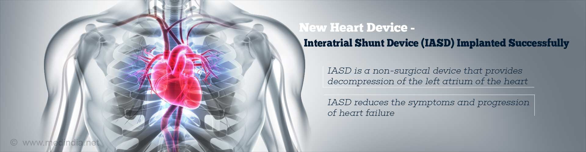 New Interatrial Shunt Device (IASD) Implantation Successful