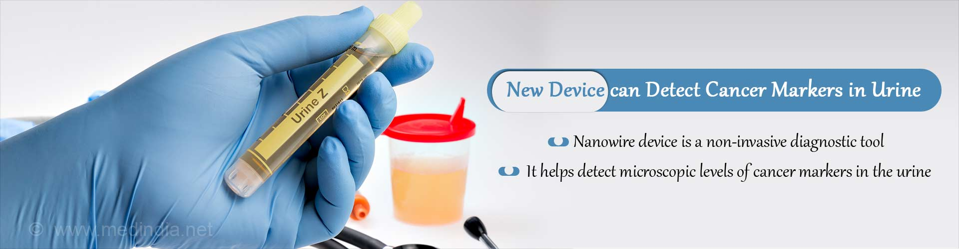 New Nanowire Device Helps Detect Cancer Markers in Urine