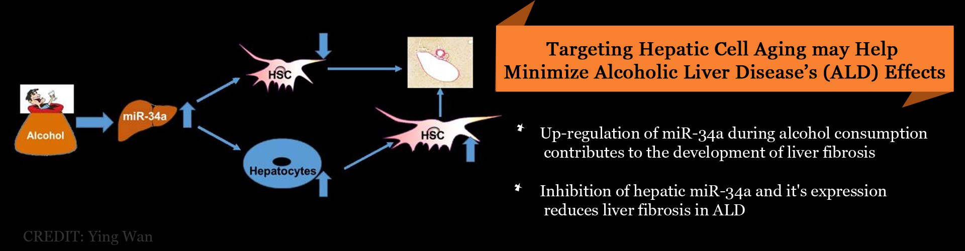 New Targets Identified to Minimize Alcoholic Liver Disease's Ill Effects