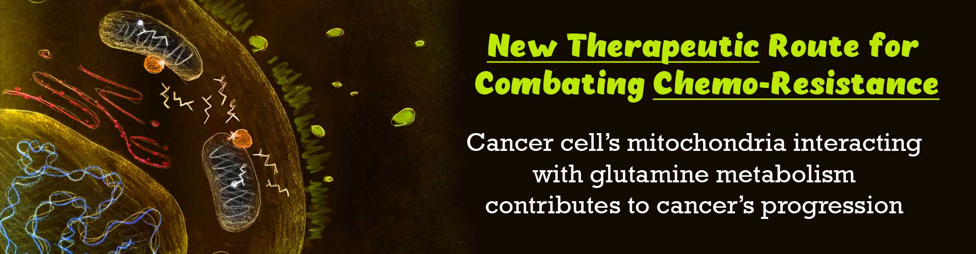 Disrupting Glutamine Metabolism Aids to Treat Chemotherapy Resistant Pancreatic Cancer