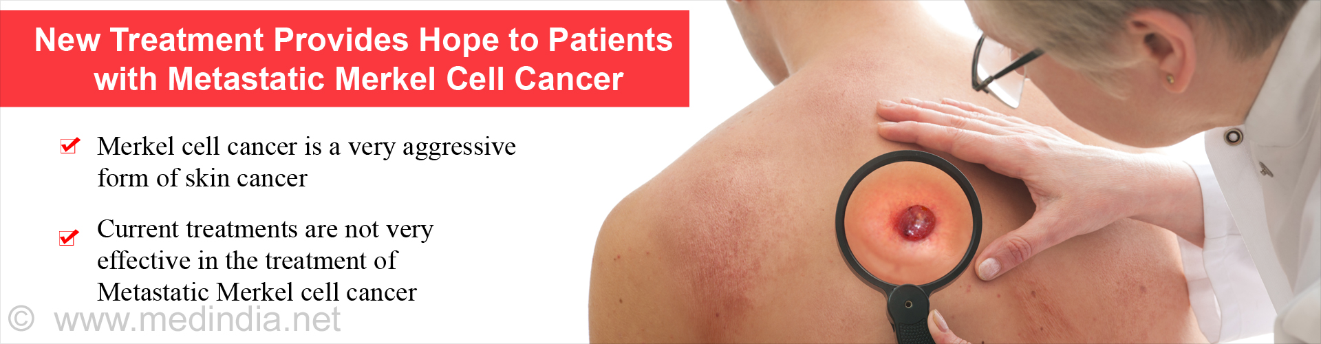 FDA Approves Avelumab for Metastatic Merkel Cell Skin Cancer