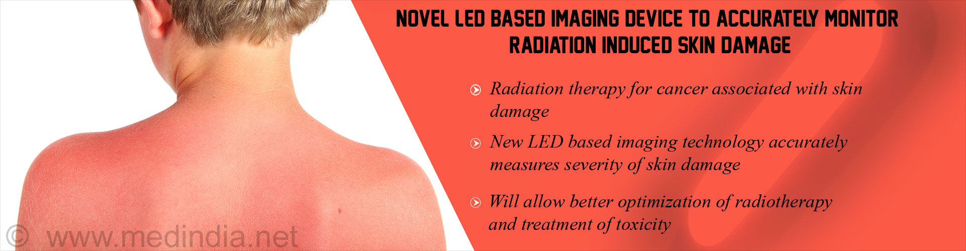 LED Device Measures Radiation Induced Skin Toxicity