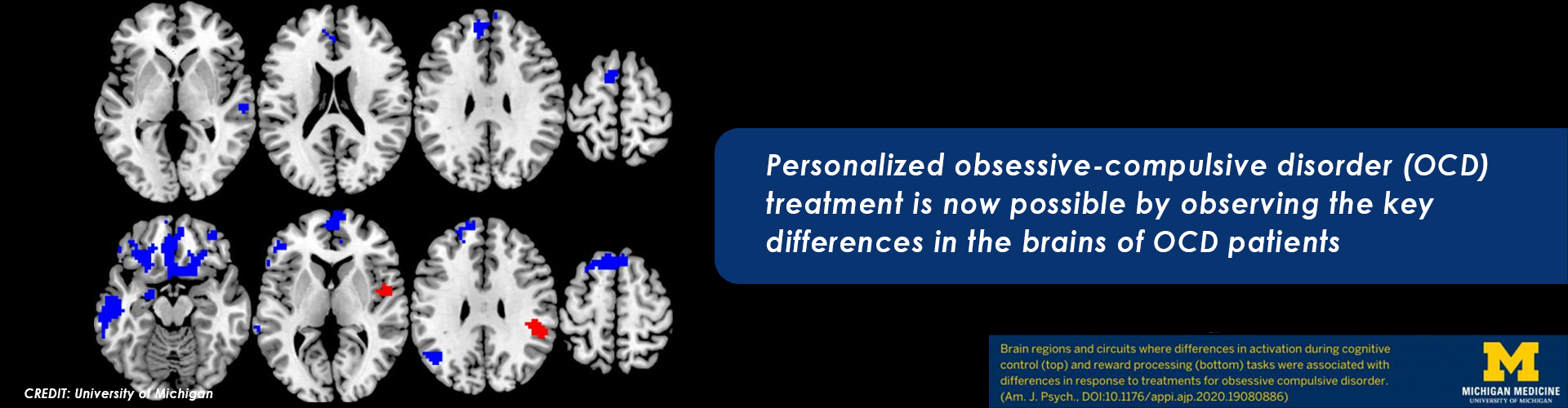 New Brain Study for Personalized OCD Treatment