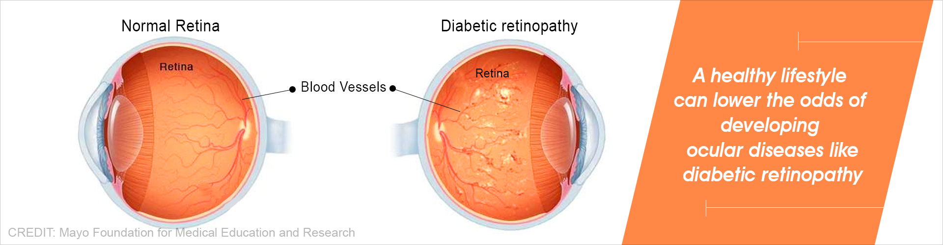 Ideal Lifestyle for Cardiovascular Health also Benefits Eye Health