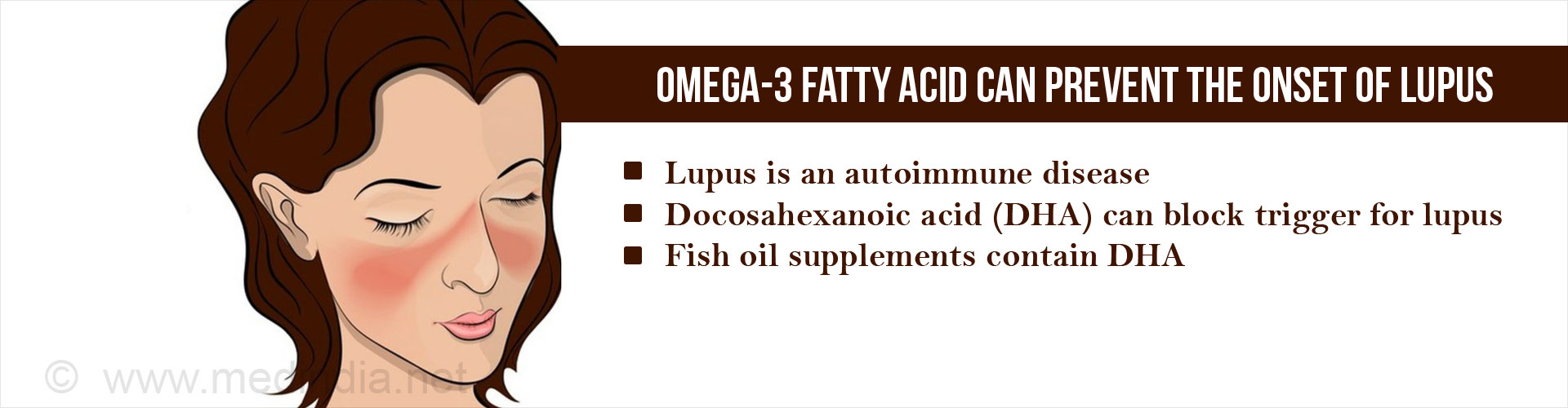 Omega-3 Fatty Acid (Docosahexaenoic Acid) can Prevent Lupus
