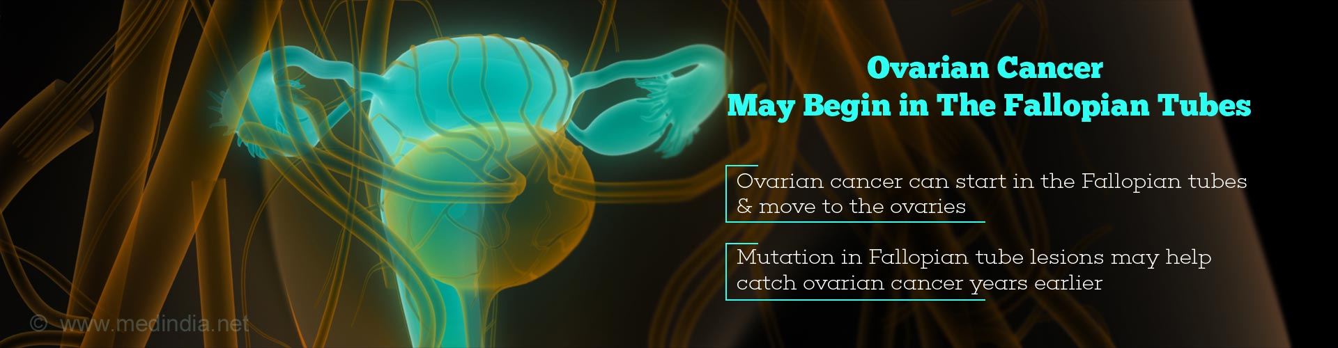 Ovarian Cancer May Originate In The Fallopian Tube