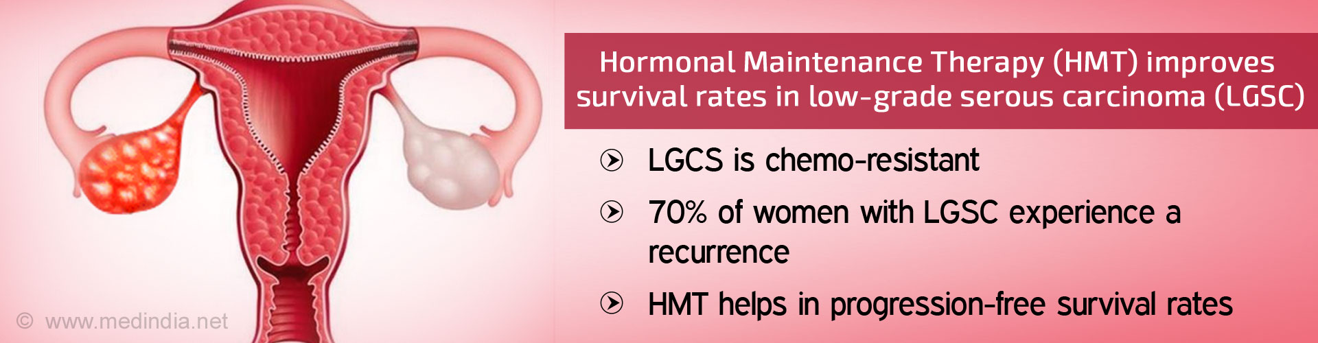 Hormonal Maintenance Therapy Improves Survival Rate in Ovarian Cancer