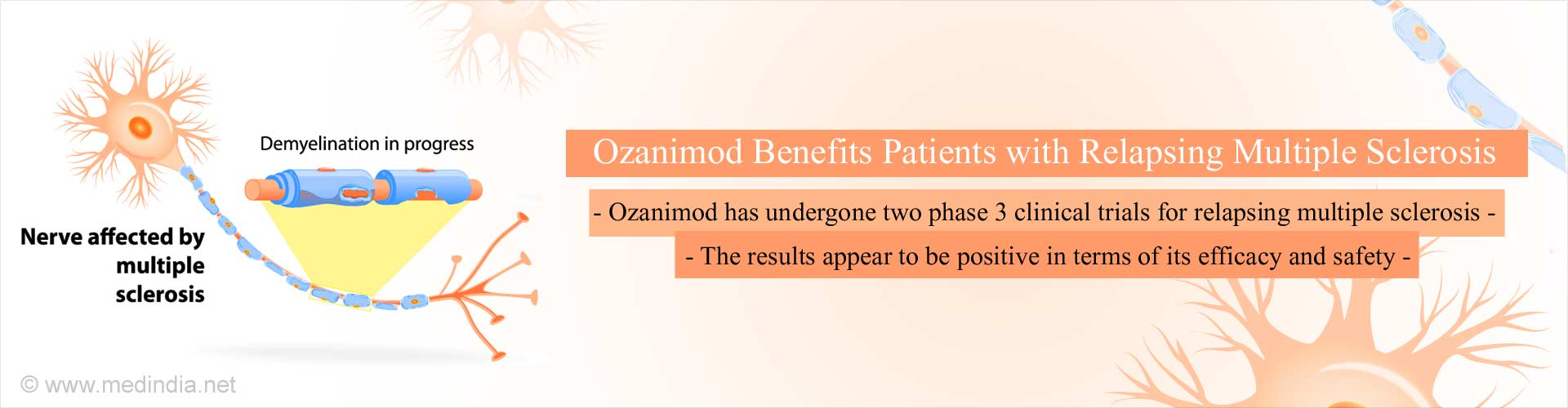 Ozanimod Shows Positive Response in Relapsing Multiple Sclerosis in Two Clinical