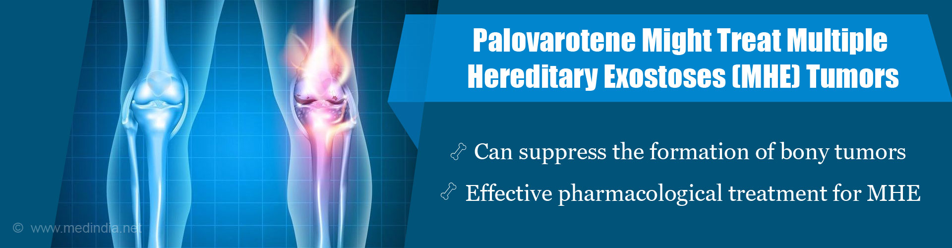 Palovarotene Drug, Shows Promise in Treating Rare Hereditary Disease