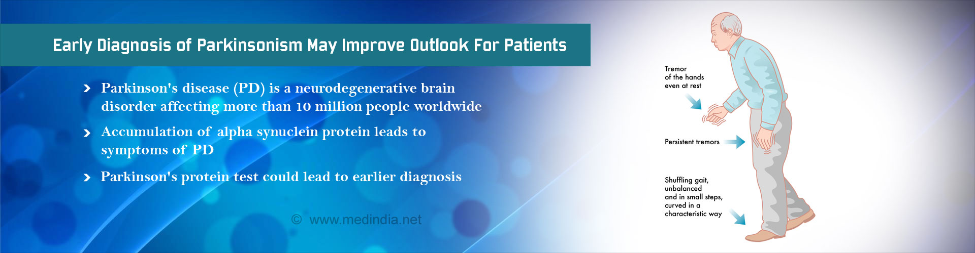 New Test for Early Diagnosis of Parkinson's Disease may Improve Outlook for Patients