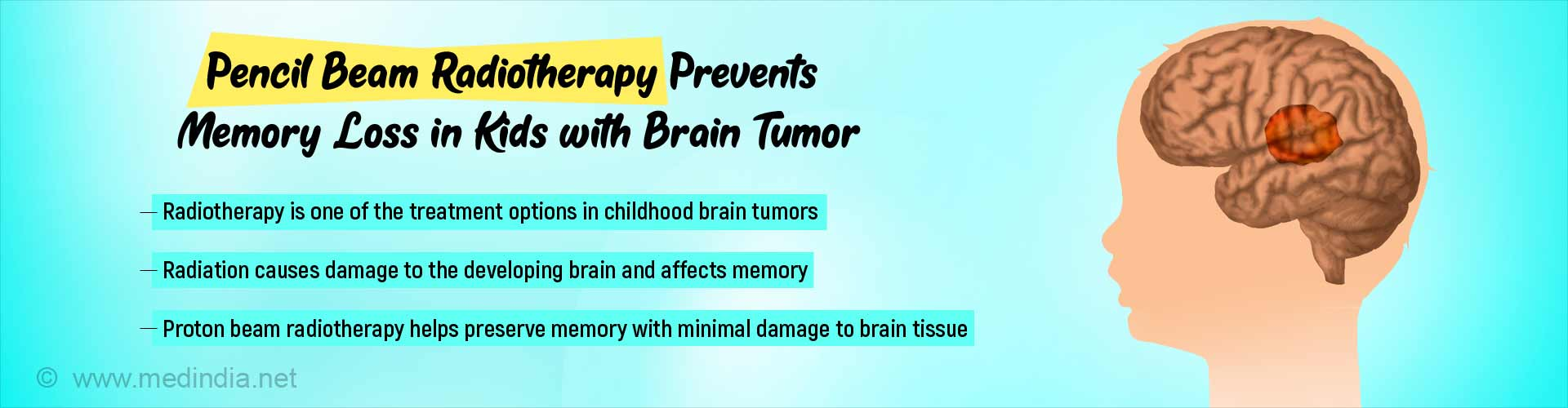 How to Prevent Memory Loss in Kids With Brain Tumors During Radiotherapy