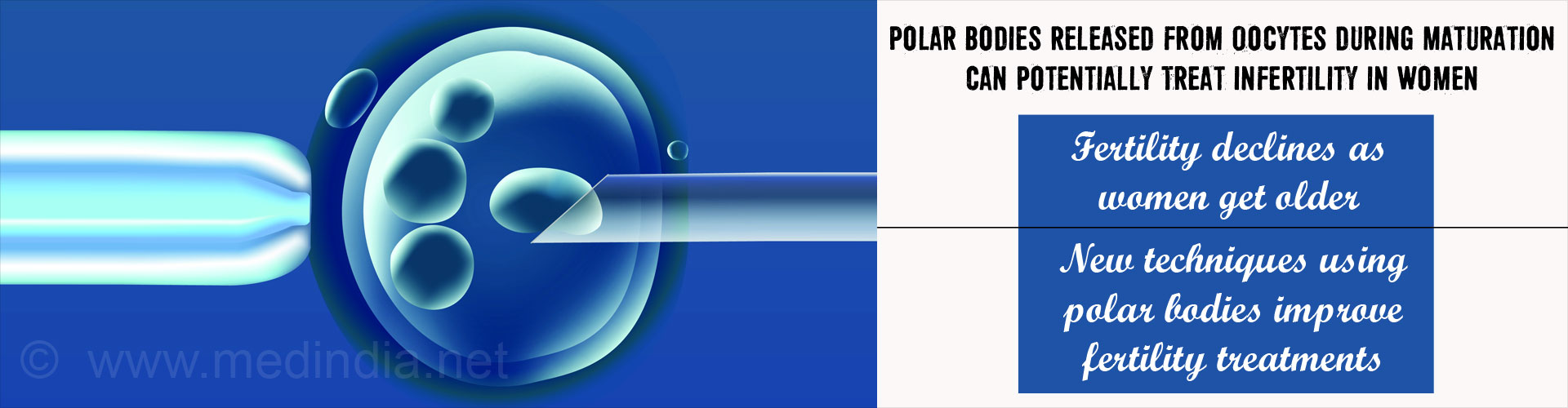 Possible Use of Polar Body for Infertility Treatment