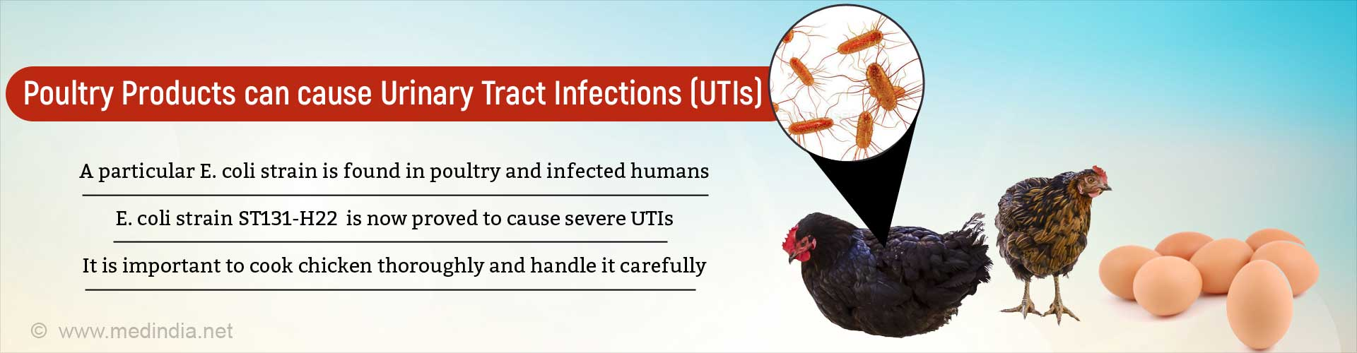 E. Coli from Infected Poultry can Cause Urinary Tract Infection
