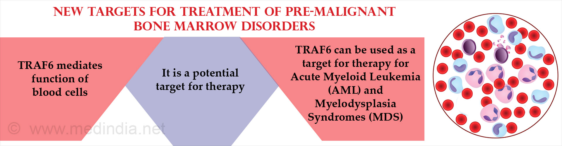 New Potential Treatment Targets Found for Pre-Malignant Bone Marrow Disorders
