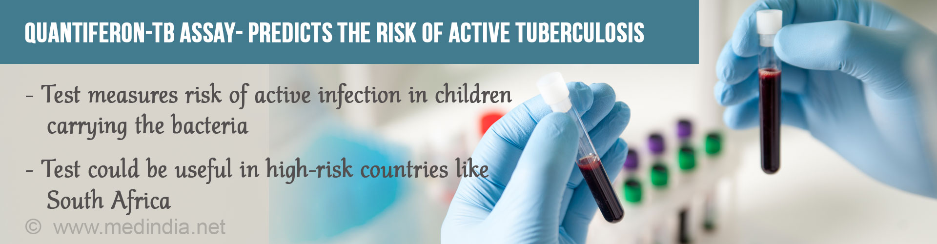 Simple Blood Test May Help Predict Children�s Risk of Developing Active Tuberculosis