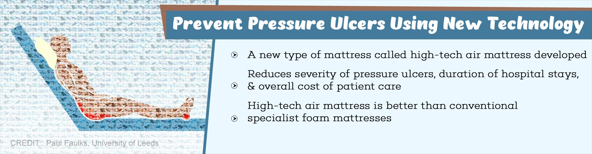 New Way to Treat Pressure Ulcers Effectively