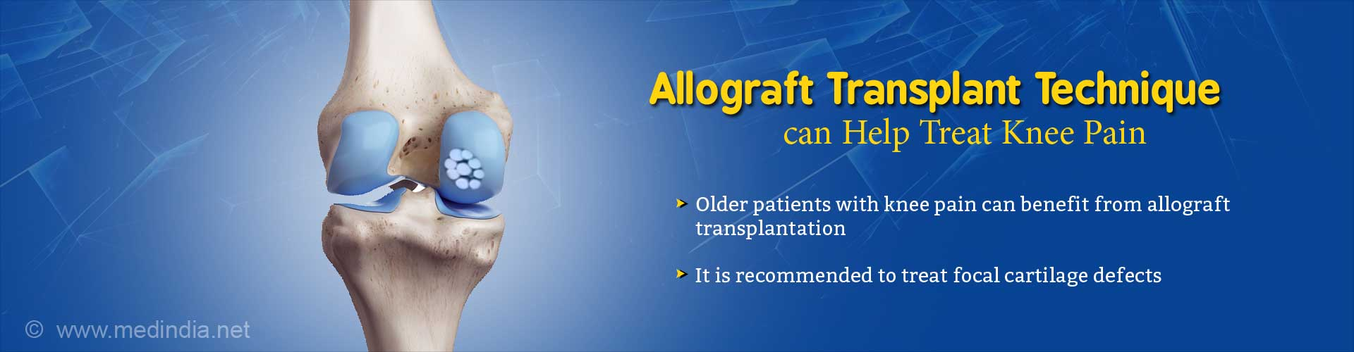 Promising Allograft Transplantation for Knee Pain Among Older Adults