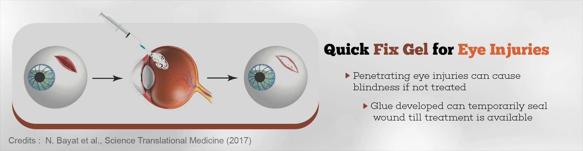 Gel to Fix Eye Injuries