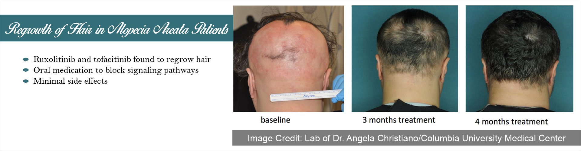 Drug for Alopecia Areata Could Bid Good Bye for Hair Loss and Baldness