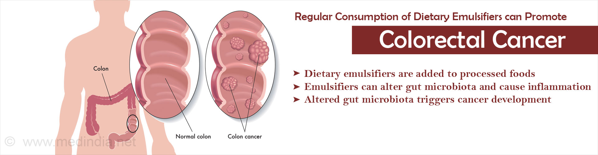 Common Emulsifiers Used as Food Additives may Promote Colon Cancer