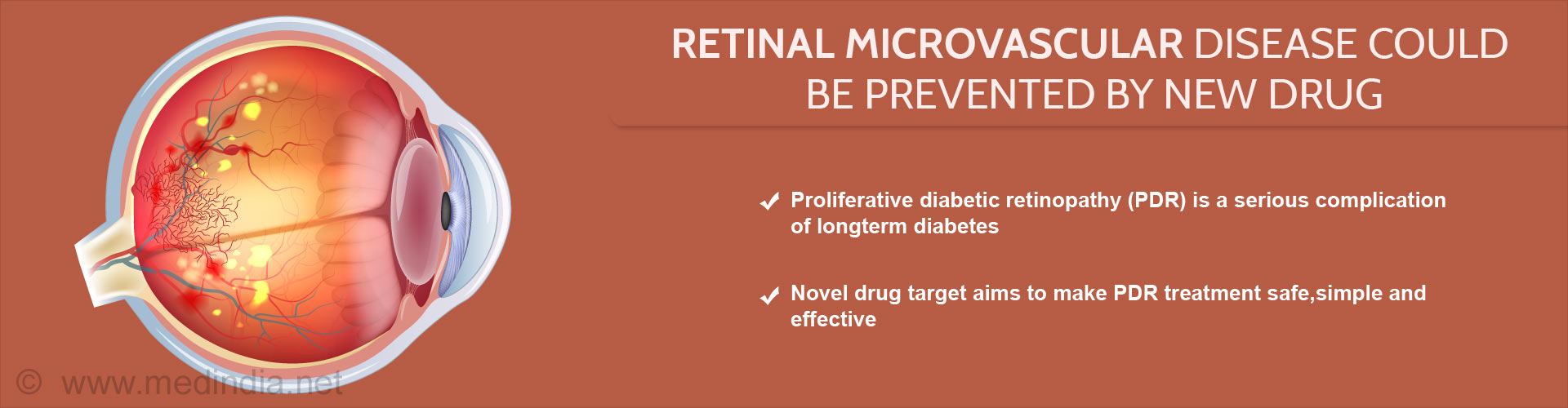 Retinal Microvascular Disease Could Be Prevented By New Drug