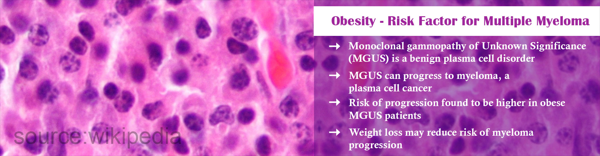 Weight Loss May Reduce Risk Of Progression Of Mgus To Multiple Myeloma