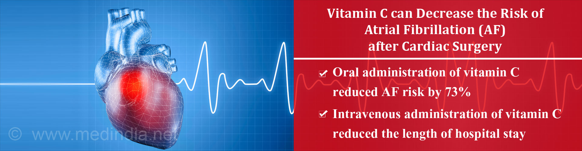 Vitamin C may Help Lower the Risk of Post-Operative Atrial Fibrillation