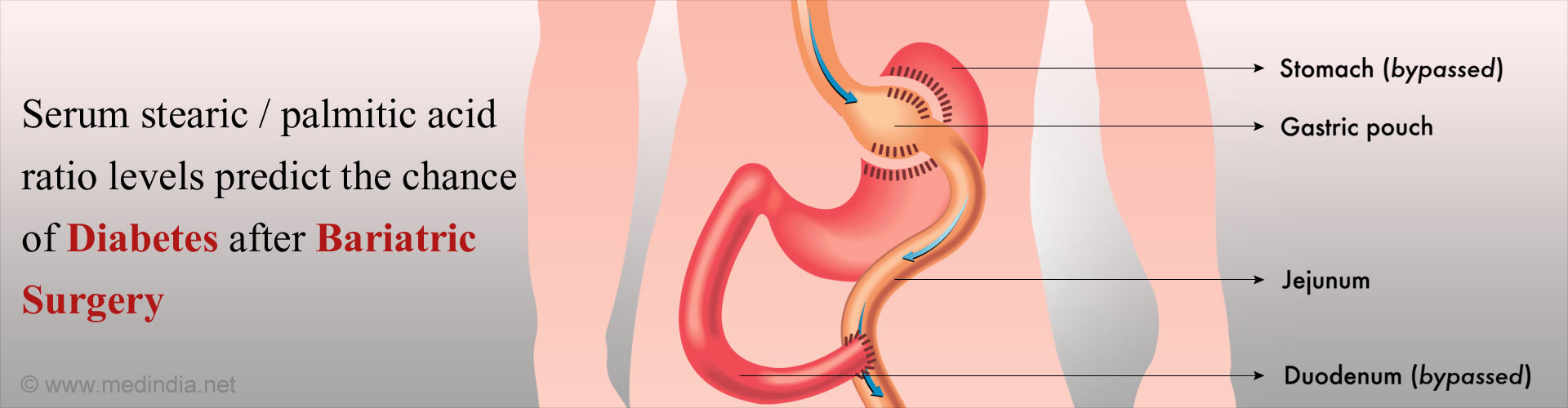 Fatty Acids Ratio Can Predict Remission of Diabetes After Bariatric Surgery