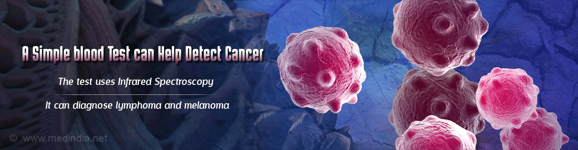 Simple Blood Tests That Can Diagnose Two Cancer Types