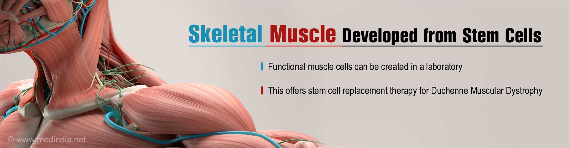 Skeletal Muscle Developed for Duchenne Muscular Dystrophy
