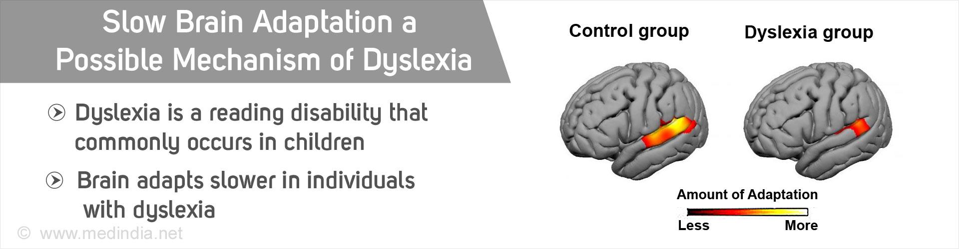 Brain Adaptation Slower in Dyslexia