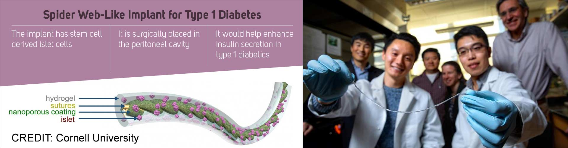 Removable Implant For Treatment of Type 1 Diabetes