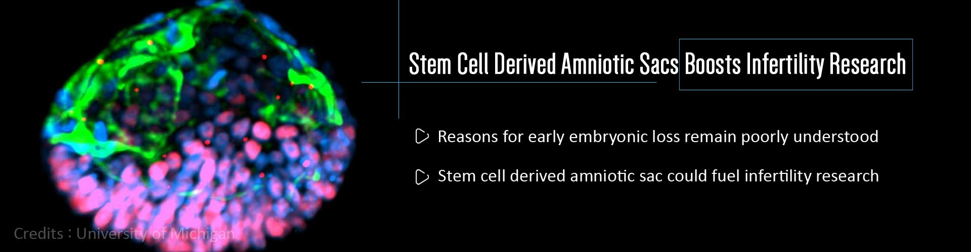 Boost To Infertility Research – Stem Cell Derived Amniotic Sacs