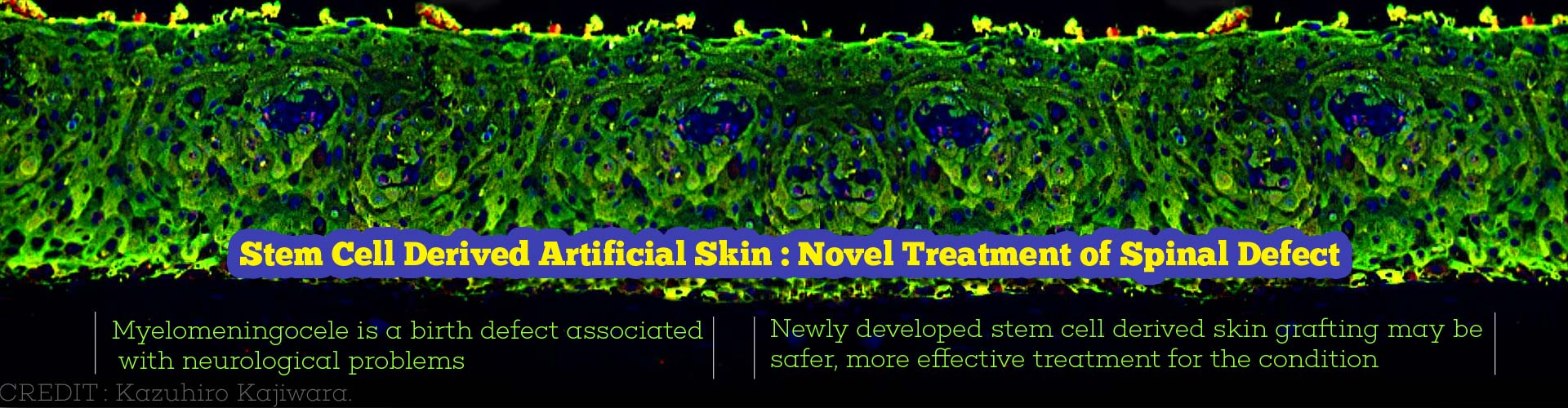 3D Skin From Induced Pluripotent Stem Cells To Treat Spinal Birth Defect