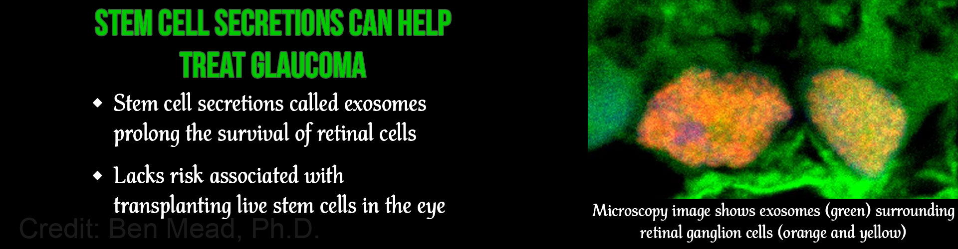 Glaucoma Can Be Treated With Stem Cell Secretions