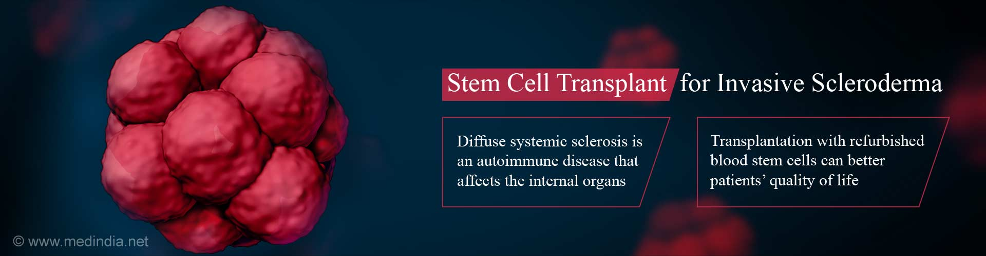 Stem Cell Transplant Improves Patients' Quality of Life With Severe Scleroderma