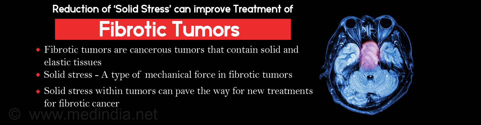 New Methods for Evaluating Solid Stress in Fibrotic Tumors