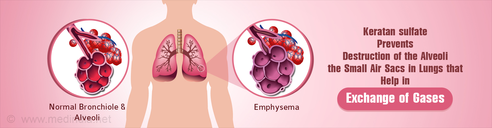 Sugar Compound Prevents Inflammation And Progression Of Emphysema