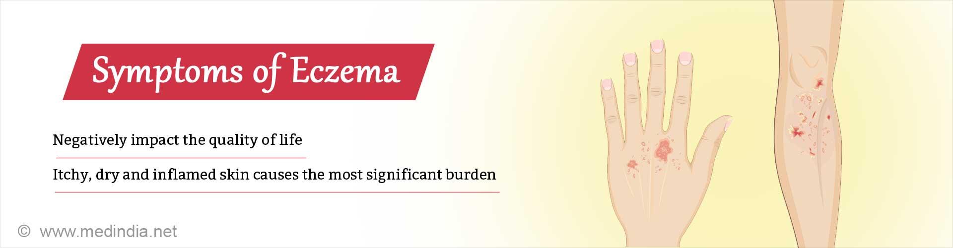 Eczema Impacts Quality of Life More Than Chronic Illnesses Like Heart Disease
