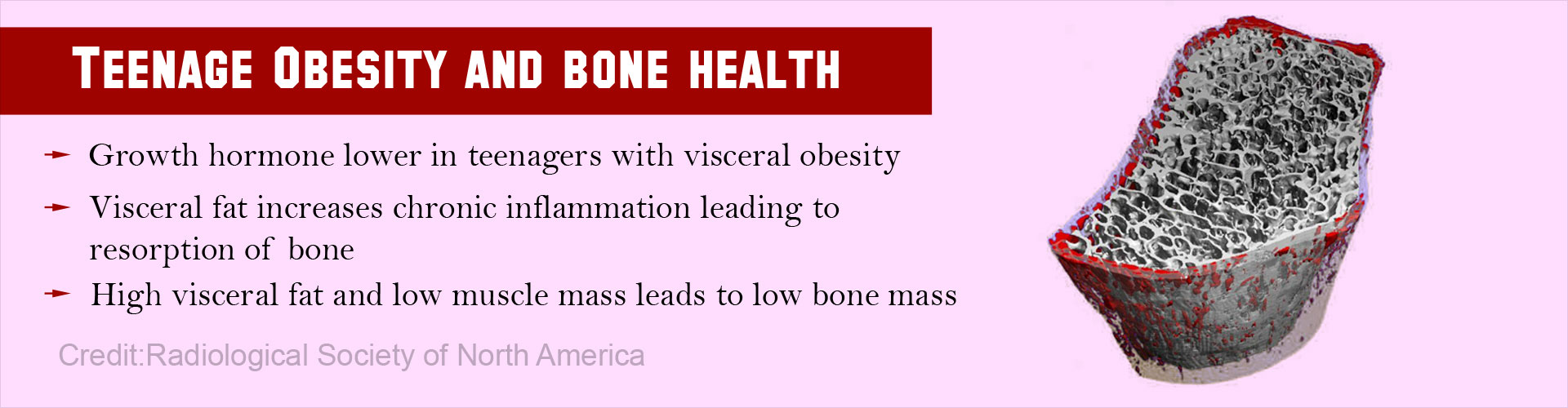 Teenage Obesity Permanently Affects Bone Health