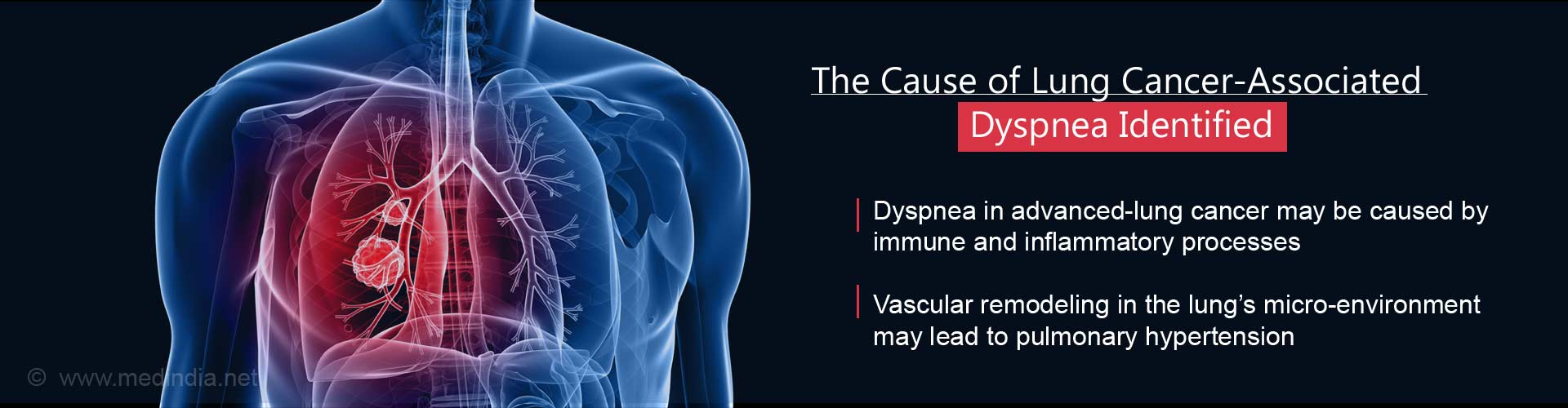 The Cause of Lung Cancer-Associated Dyspnea Identified