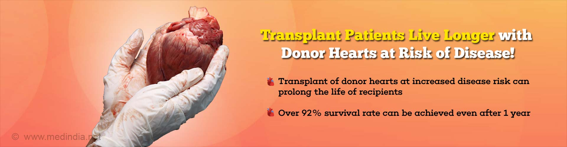 Donor Heart at Increased Disease Risk is Better Than Disease-free Heart