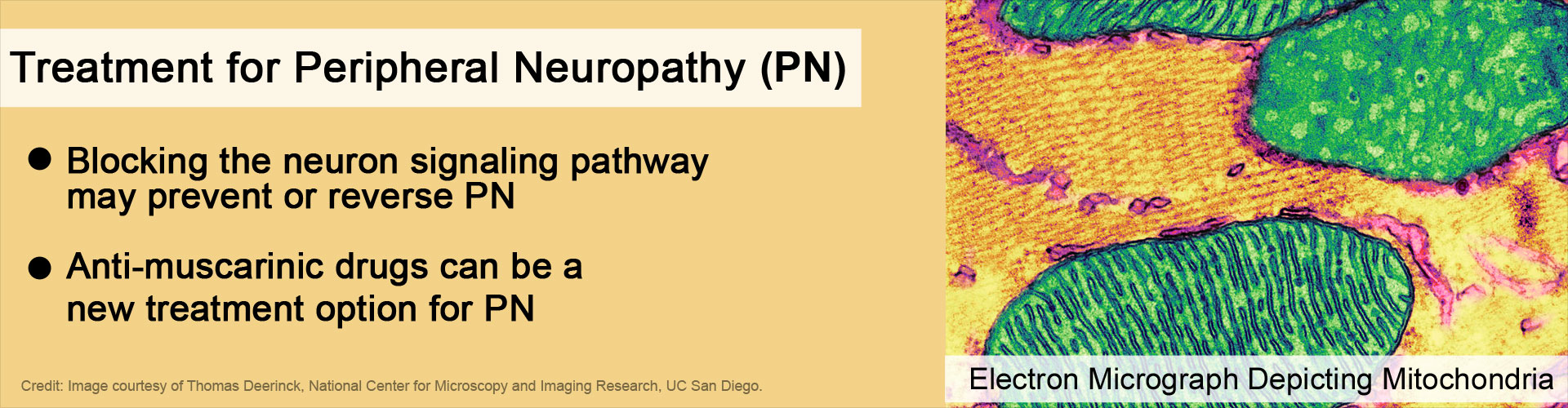New Treatment For Peripheral Neuropathy