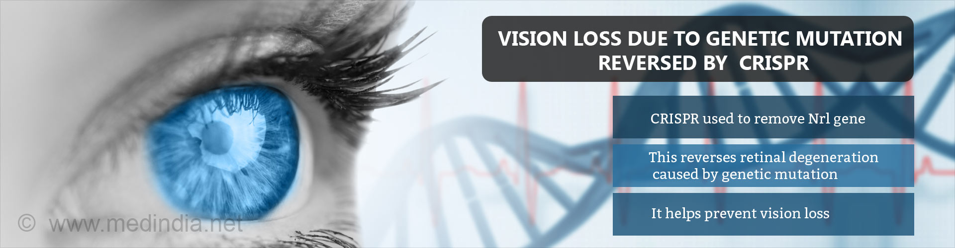 CRISPR Used to Modify Vision Loss Caused by Genetic Mutation