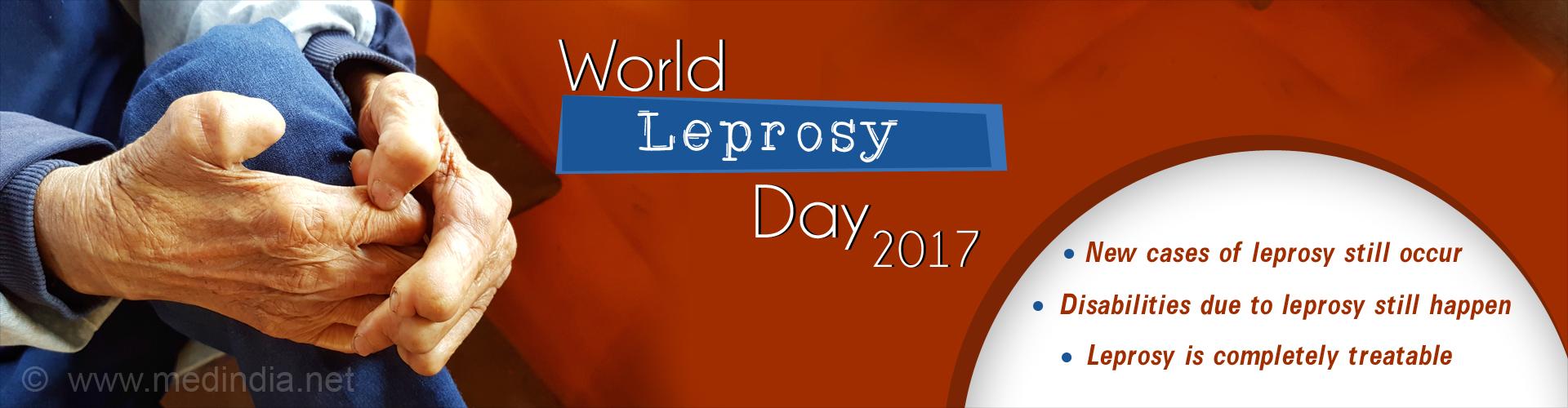 The World Leprosy Day 2017
