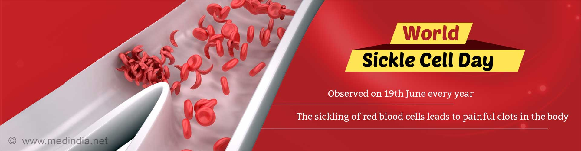 World Sickle Cell Anemia Day