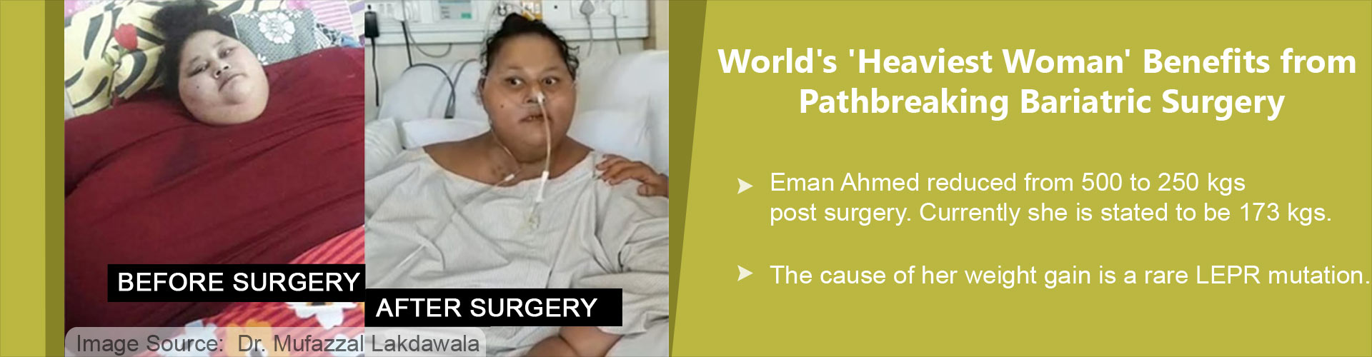 Exclusive Interview With Dr. Muffazal Lakdawala - Bariatric Surgeon of 500kg Egyptian Woman